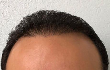 Через 6 месяцев после пересадки волос