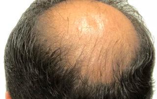 Донорская область затылка спустя полгода после трансплнтации волос