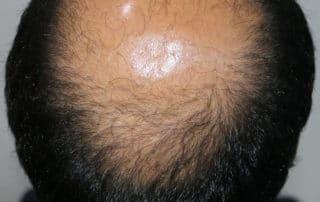 Вид сверху до пересадки волос