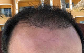 Спустя 3 месяца после пересадки волос