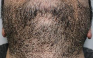 Донорская область бороды до пересадки волос