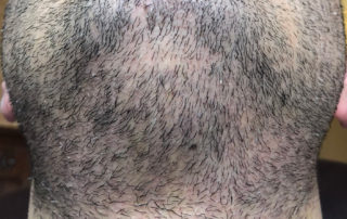 Спустя 4 дня после пересадки волос