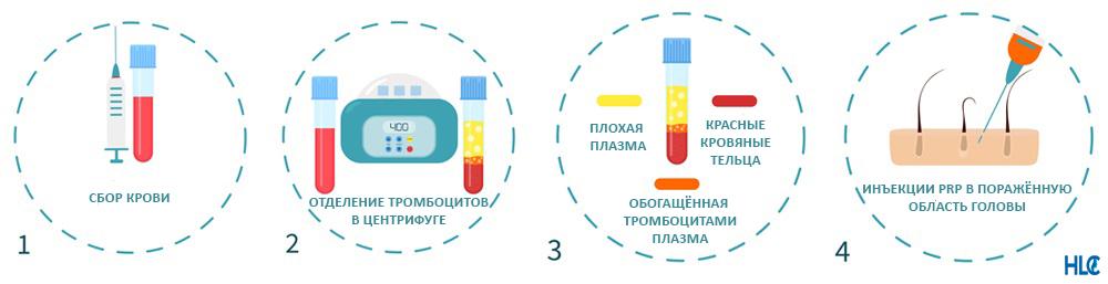 Этапы процедуры ПРП-терапии для скальпа