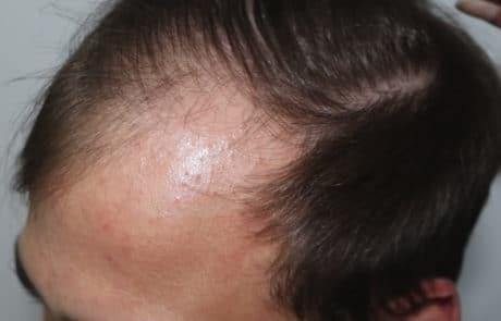 Передняя линия до пересадки волос мужчине, вид слева