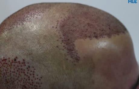 Вид сбоку - после процедуры