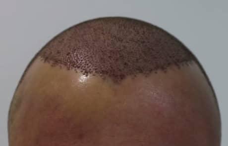 Сразу после бесшовной переадки волос