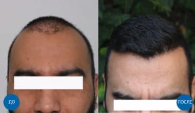 До и после пересадки 7000 графтов волос мужчине на голову