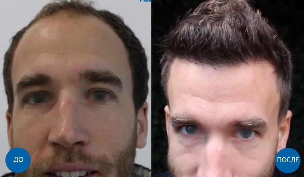 До и после пересадки 3800 графтов