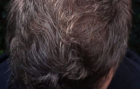 Через 10 месяцев после трансплантации волос