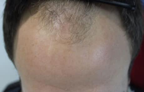 Алопеция затронула переднюю линию волос