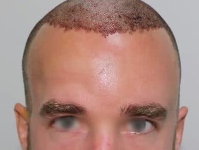 Сразу после пересадки 3800 донорских волос с затылка