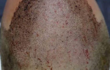Сразу после пересадки 3800 донорских волос с затылка - Вид сверху