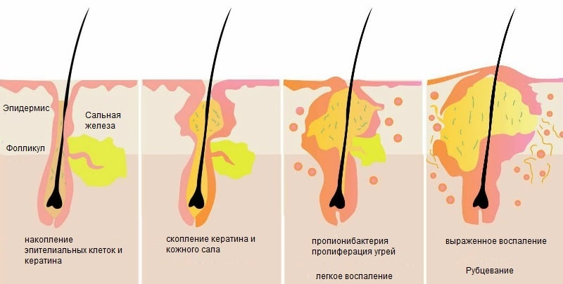 Схема развития воспаления волосяного фолликула