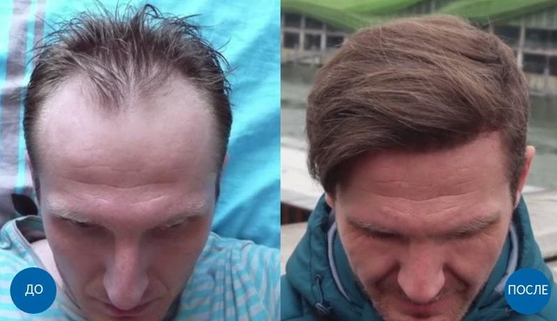 Результаты пересадки волос в Турции