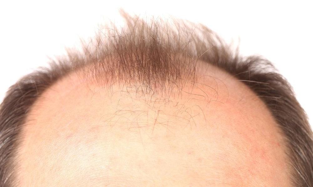 Влияние тестостерона и дигидростерона на выпадение волос