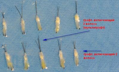 Вид графтов волос в трансплантации