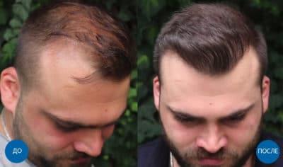 Результат пересадки 3040 графтов волос до и после трансплантации волос