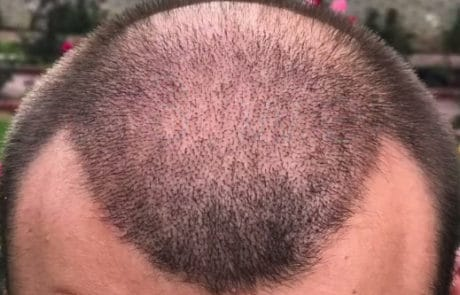 Через 3 недели после пересадки волос