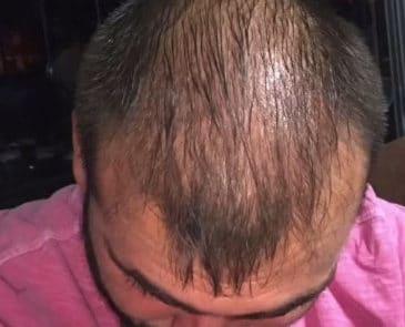 Спустя 2 месяца после трансплантации волос