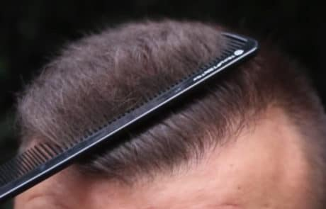 Густота роста волос спустя 6 месяцев