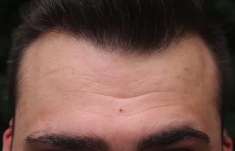 Спустя 8 месяцев после пересадки волос методом FUE