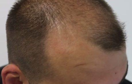 Стрижка головы мужчине перед операцией