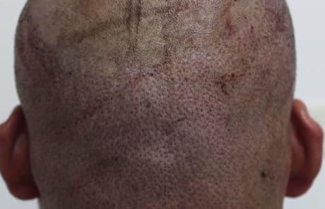 После извлечения 3040 волос из донорской зоны затылка при пересадке