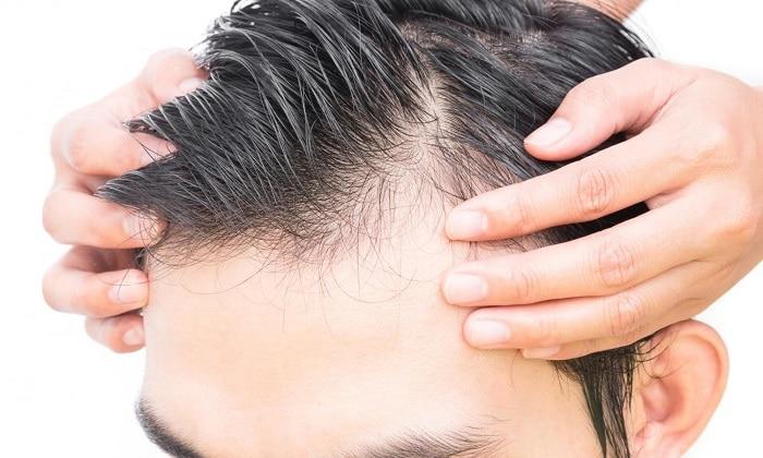 Как оценивается облысение у мужчин?дение волос у мужчин, гормон роста влияет на рост волос