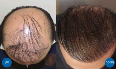 Результат до и после пересадки волос мужчине на голову с затылка и бороды