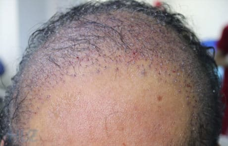 Темя после пересадки донорских 2000 графтов с бороды