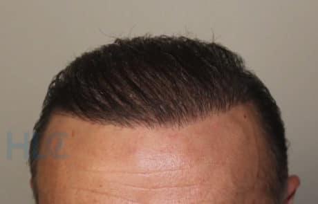 Вид передней линии волос спустя 8 месяцев