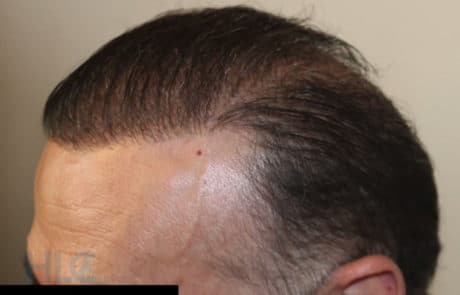 Вид передней линии волос спустя 8 месяцев, сбоку