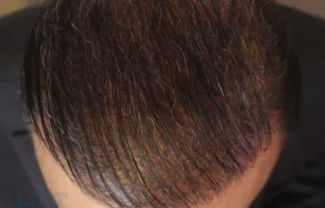 Вид передней линии и темени спустя 8 месяцев после пересадки волос