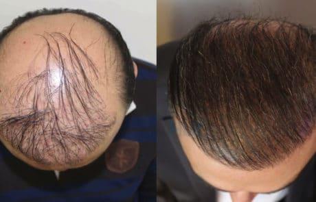 До пересадки и спустя 8 месяцев после трансплантации волос с затылка и бороды бесшовным методом FUE