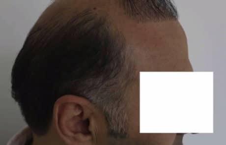 До пересадки волос мужчине с затылка и бороды - Вид справа