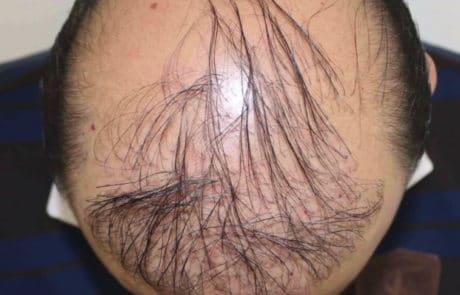 До пересадки волос мужчине с затылка и бороды - Вид сверху 2