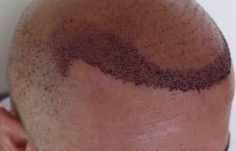 Результат первой сессии трансплантации волос, вид справа
