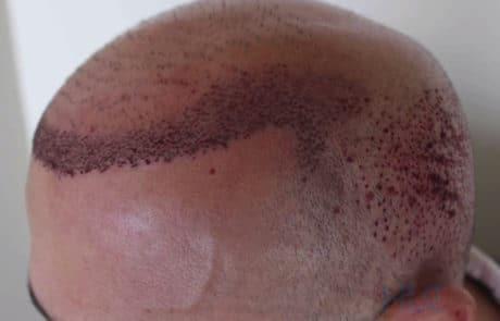 Результат первой сессии трансплантации волос, вид слева