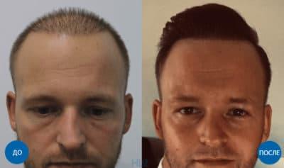 До и после пересадки 4300 графтов мужчине на голову