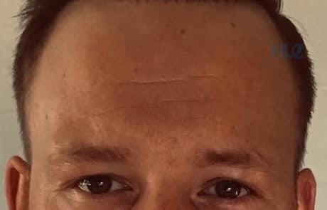 Спустя 12 месяцев после трансплантации волос