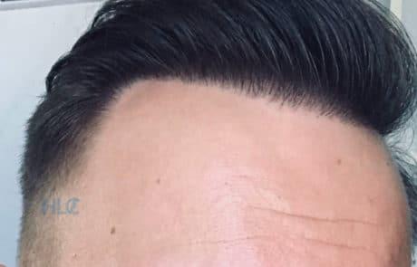 Спустя 12 месяцев после трансплантации 4300 графтов волос