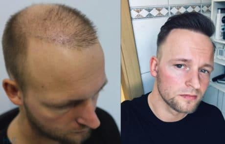 Сравнение до и спустя 1 год после пересадки волос