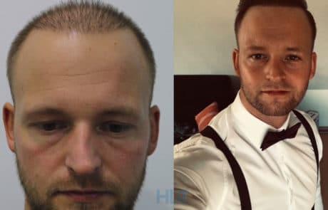 До и спустя 10 месяцев после пересадки волос с затылка и бороды на переднюю линию и темя