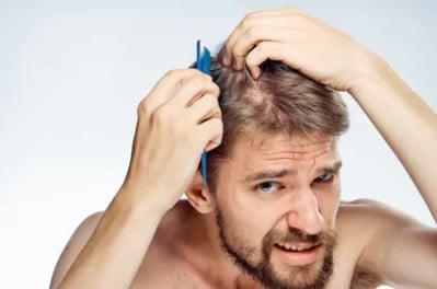 Лечение облысения макушки у мужчин