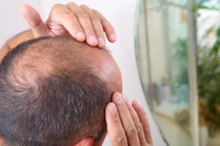Признаки выпадения волос на макушке у мужчин