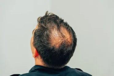 Причины и профилактика выпадения волос на макушке