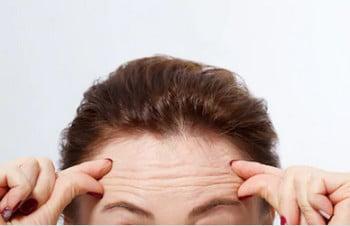 Пересадка волос на залысины