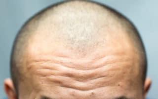 Пересадка волос на лоб: стоимость
