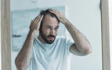 Почему лысеет лоб
