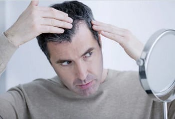 Трансплантация волос на лоб мужчин